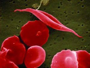 spirulina zapobiega anemii